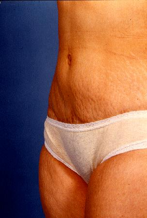 ABDOMINOPLASTY - AFTER