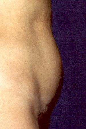 ABDOMINOPLASTY - BEFORE