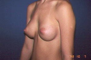 BREASTS - AFTER