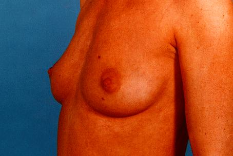 BREASTS - BEFORE