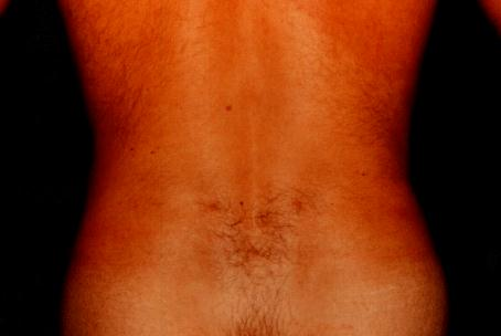FLANK LIPOSUCTION - AFTER