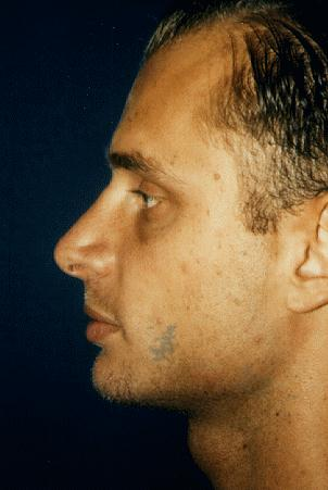 RHINOPLASTY - AFTER