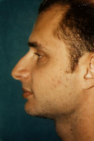 RHINOPLASTY - BEFORE