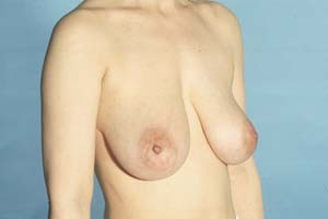 BREAST LIFT - BEFORE