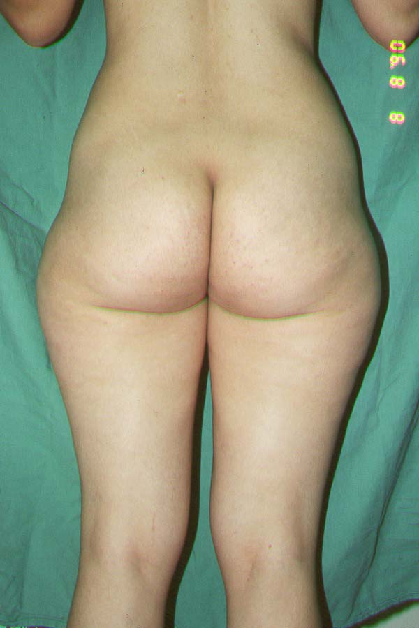 LIPOSUCTION - BEFORE